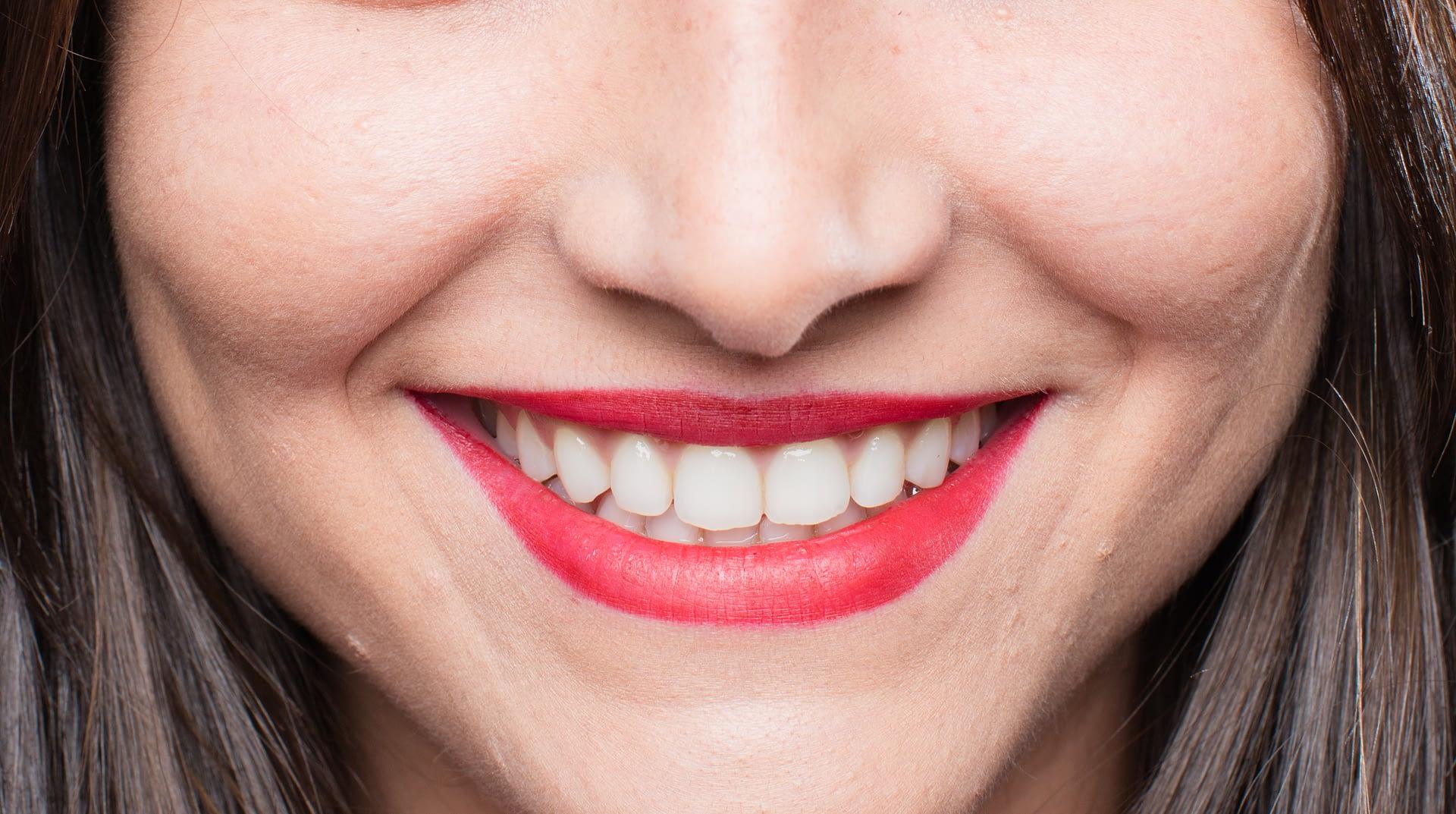5 tipů pro zdravé a krásné zuby